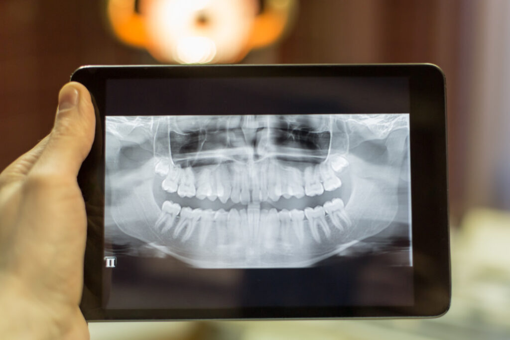 Escaner RX implantes