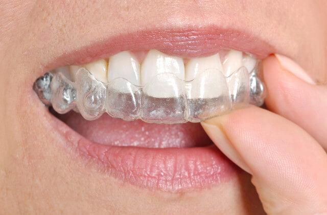 Ortodoncia-invisible 1