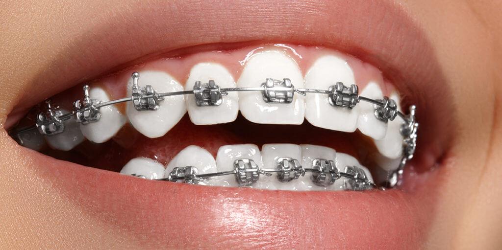 cuidar-los-dientes-durante-tratamiento-ortodoncia